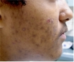 Acne Pigmentation Removal