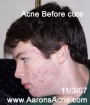 Body Acne Cures