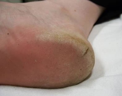 Heel Callus Cracked heels - Podantics Podiatry Adelaide