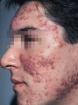 Help for Severe Acne