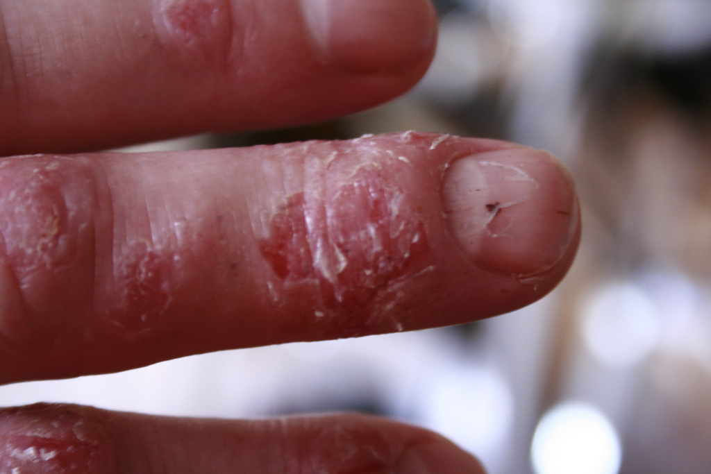 Natural Treatments For Psoriasis On Hands