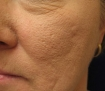 How to Reduce Enlarged Pores