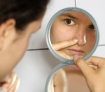 How to Remove Blackhead Blemishes