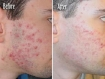 Information on Laser Acne Removal